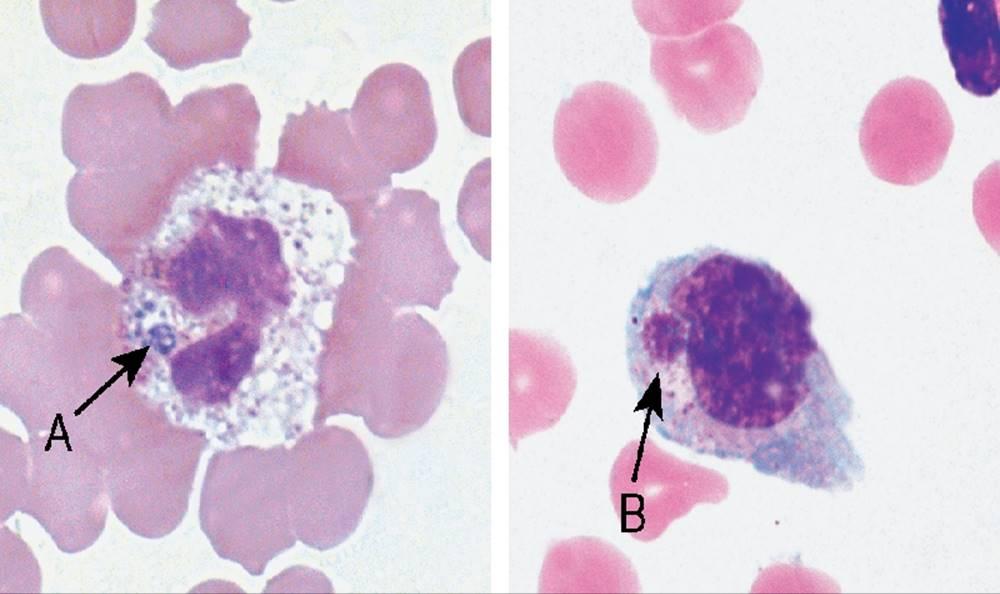 scfv antibody principles and clinical application