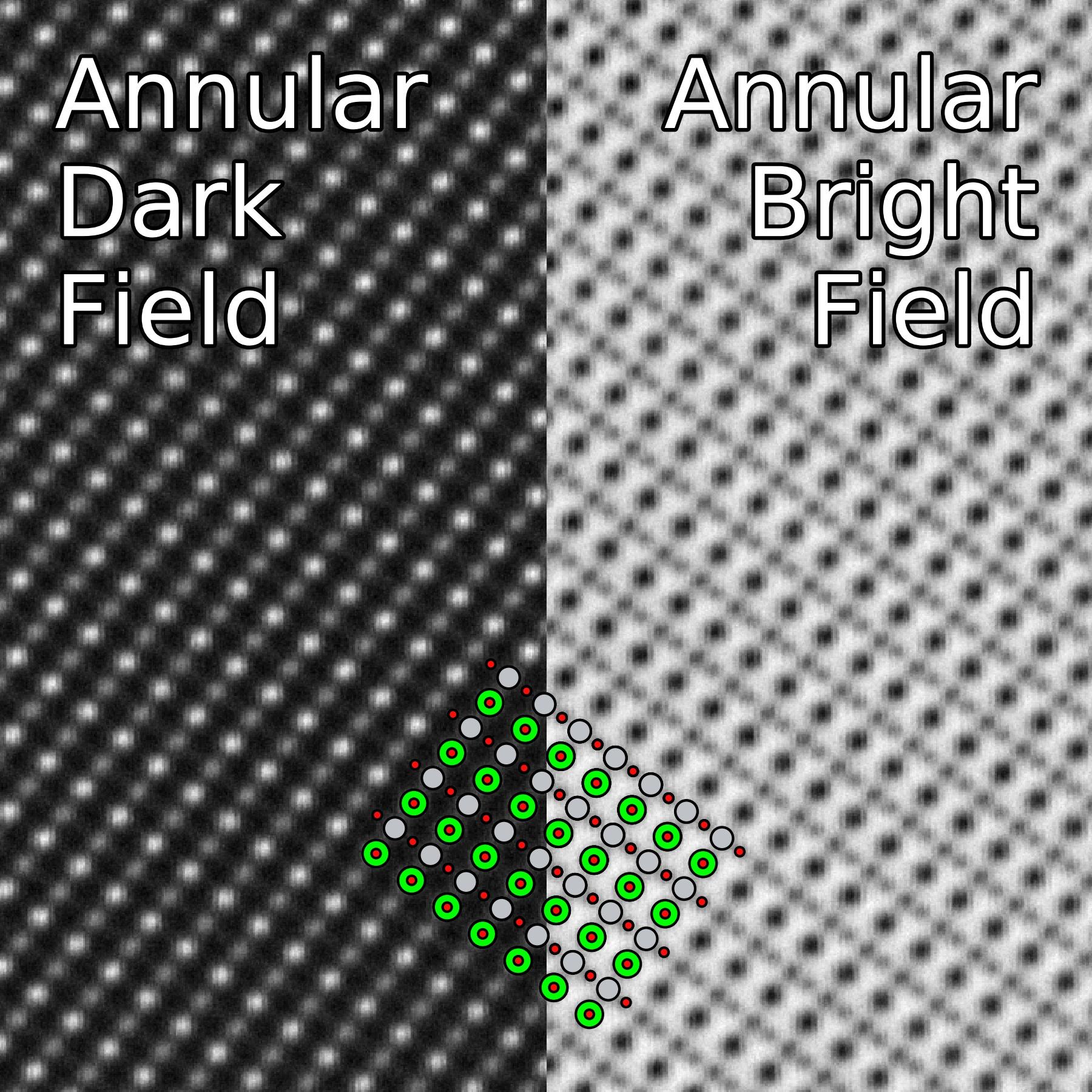 application of bright field microscopy